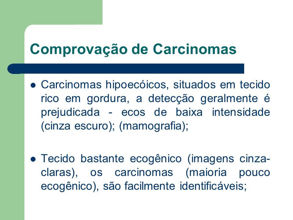 Comprovação de Carcinomas Carcinomas hipoecóicos, situados em tecido rico em gordura, a detecção geralmente é prejudicada - ecos de baixa intensidade
