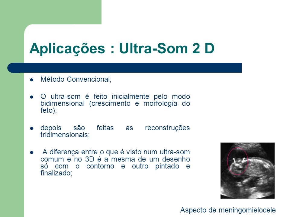 Aplicações : Ultra-Som 2 D Método Convencional; O ultra-som é feito inicialmente pelo modo bidimensional (crescimento e morfologia do feto); depois sã