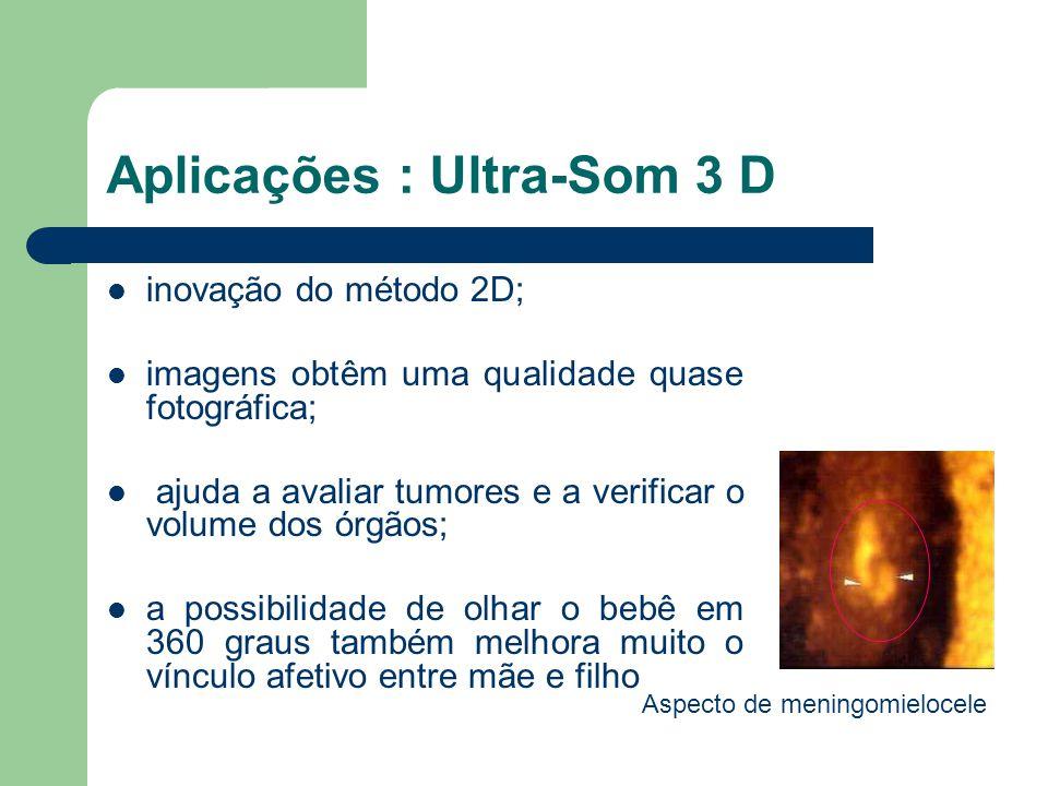 Aplicações : Ultra-Som 3 D inovação do método 2D; imagens obtêm uma qualidade quase fotográfica; ajuda a avaliar tumores e a verificar o volume dos ór