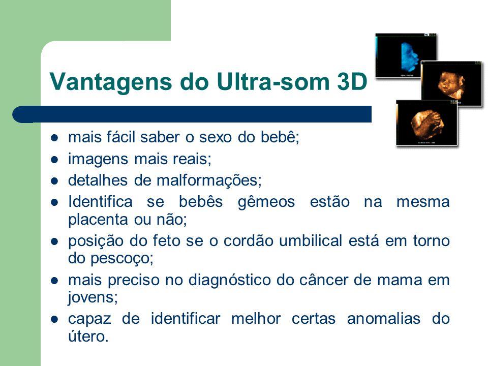 Vantagens do Ultra-som 3D mais fácil saber o sexo do bebê; imagens mais reais; detalhes de malformações; Identifica se bebês gêmeos estão na mesma pla