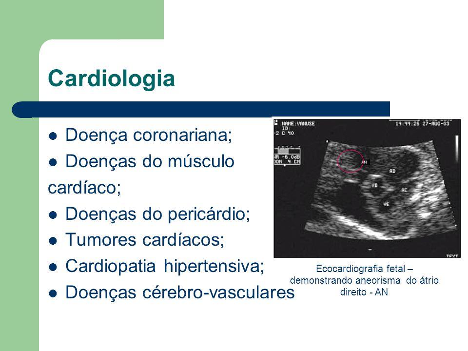 Cardiologia Doença coronariana; Doenças do músculo cardíaco; Doenças do pericárdio; Tumores cardíacos; Cardiopatia hipertensiva; Doenças cérebro-vascu