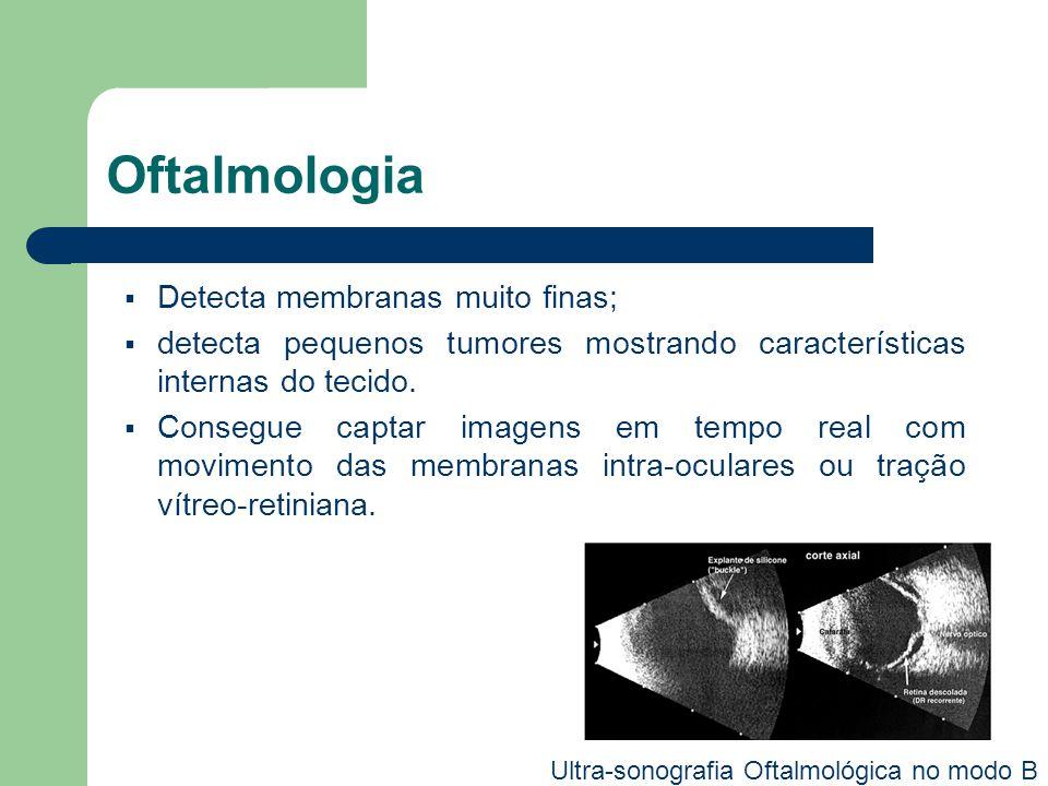 Oftalmologia Detecta membranas muito finas; detecta pequenos tumores mostrando características internas do tecido. Consegue captar imagens em tempo re