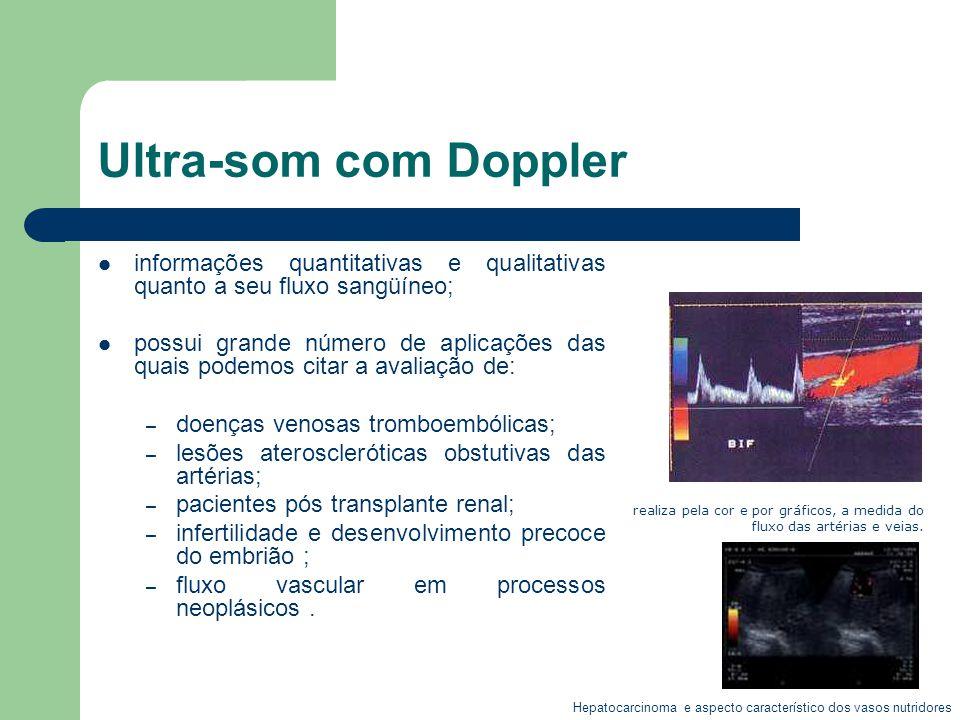 Ultra-som com Doppler informações quantitativas e qualitativas quanto a seu fluxo sangüíneo; possui grande número de aplicações das quais podemos cita