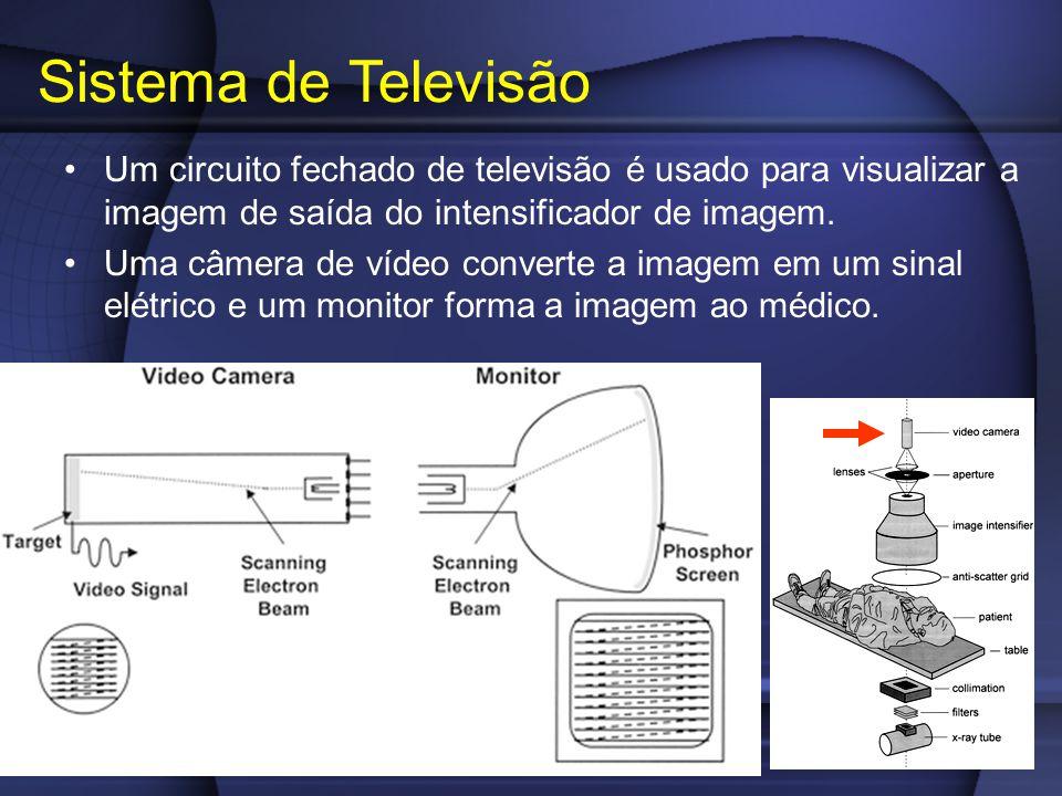 Um circuito fechado de televisão é usado para visualizar a imagem de saída do intensificador de imagem.