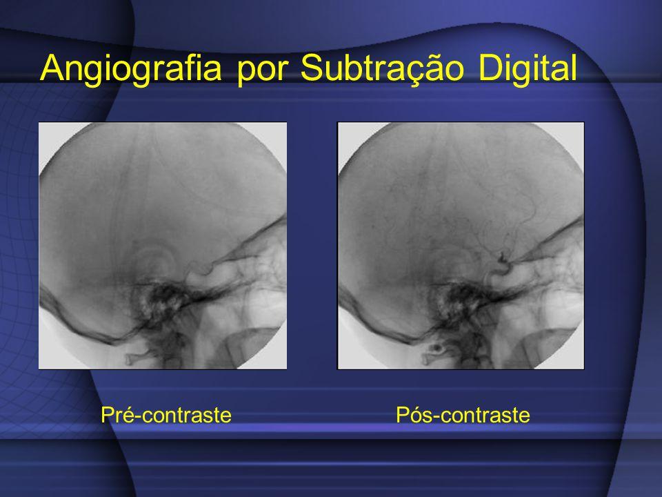 Angiografia por Subtração Digital Pré-contraste Pós-contraste