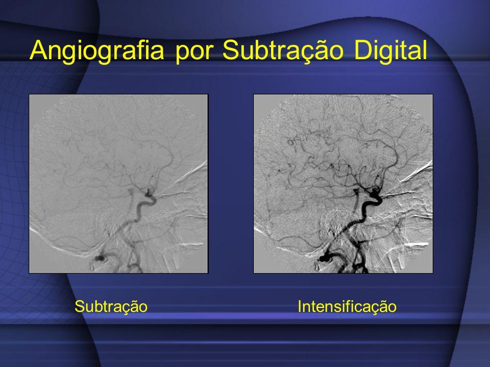 Angiografia por Subtração Digital Subtração Intensificação