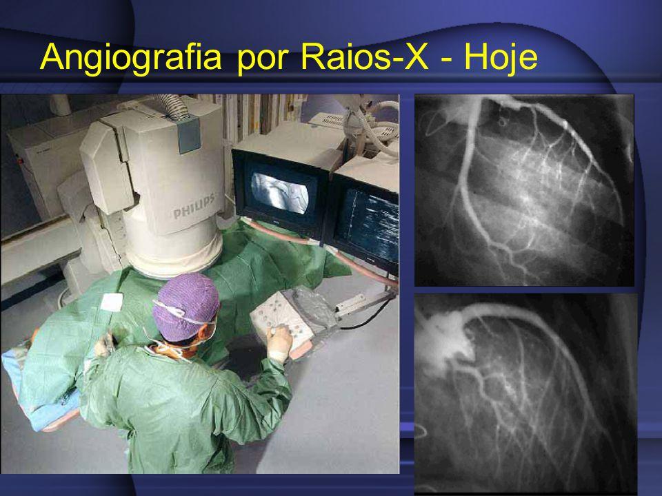 Angiografia por Raios-X - Hoje