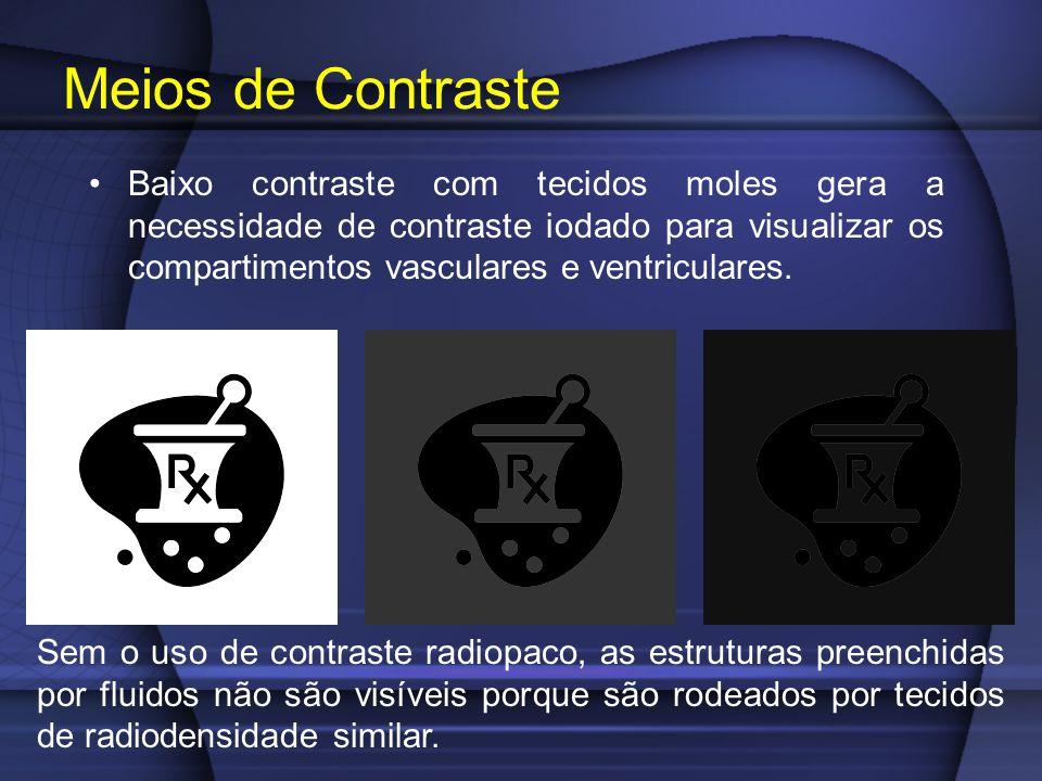 Baixo contraste com tecidos moles gera a necessidade de contraste iodado para visualizar os compartimentos vasculares e ventriculares.