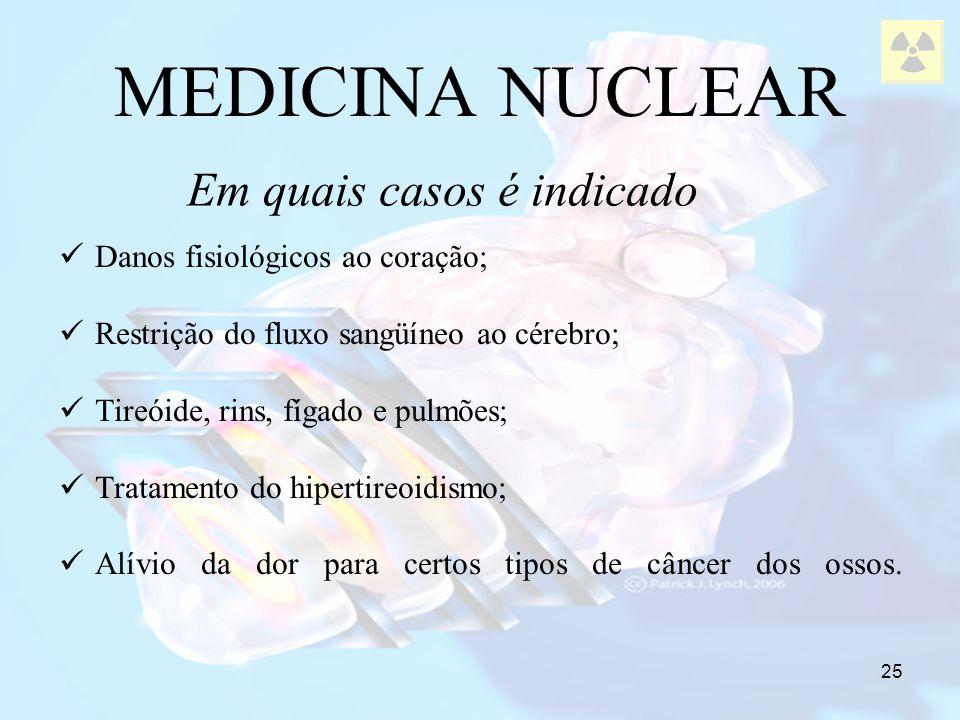 25 MEDICINA NUCLEAR Danos fisiológicos ao coração; Restrição do fluxo sangüíneo ao cérebro; Tireóide, rins, fígado e pulmões; Tratamento do hipertireo