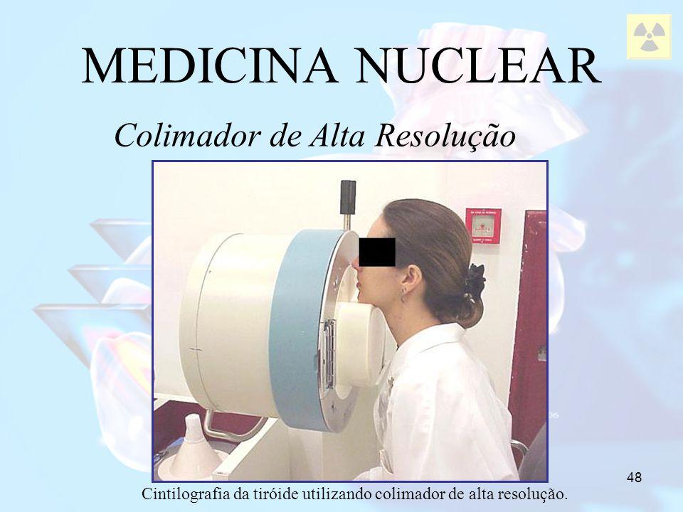 48 MEDICINA NUCLEAR Colimador de Alta Resolução Cintilografia da tiróide utilizando colimador de alta resolução.
