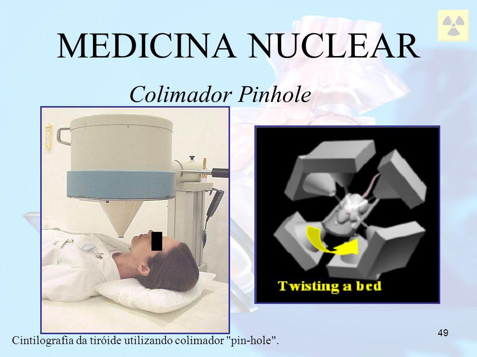 49 MEDICINA NUCLEAR Colimador Pinhole Cintilografia da tiróide utilizando colimador