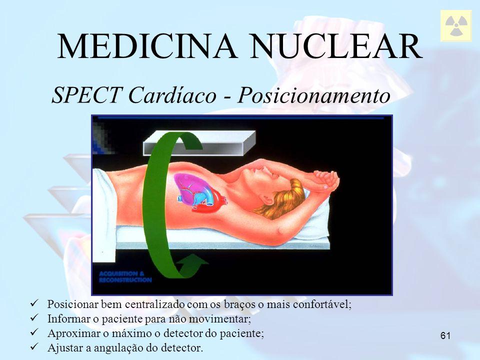 61 MEDICINA NUCLEAR SPECT Cardíaco - Posicionamento Posicionar bem centralizado com os braços o mais confortável; Informar o paciente para não movimen