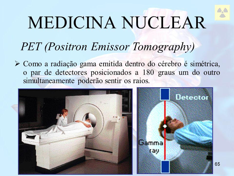 65 MEDICINA NUCLEAR Como a radiação gama emitida dentro do cérebro é simétrica, o par de detectores posicionados a 180 graus um do outro simultaneamen