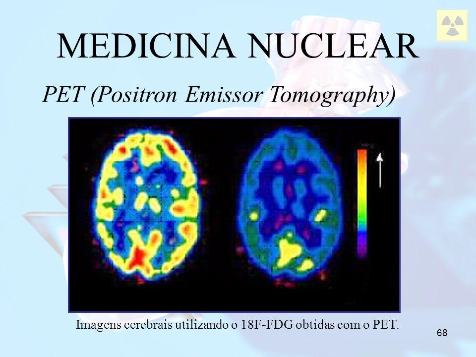 68 MEDICINA NUCLEAR PET (Positron Emissor Tomography) Imagens cerebrais utilizando o 18F-FDG obtidas com o PET.