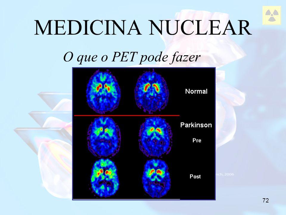 72 MEDICINA NUCLEAR O que o PET pode fazer