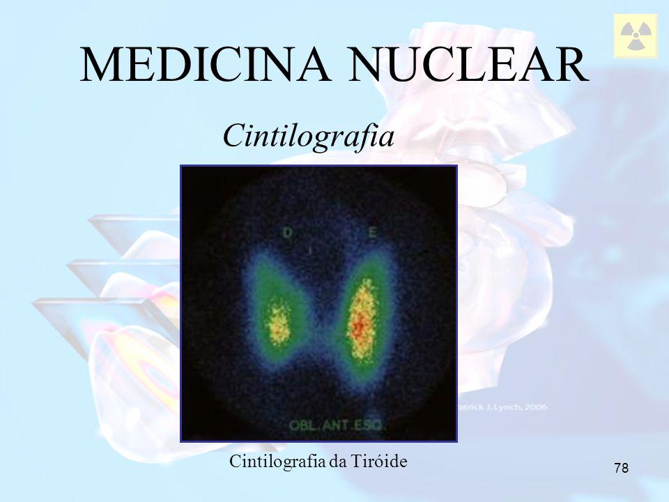 78 MEDICINA NUCLEAR Cintilografia da Tiróide Cintilografia