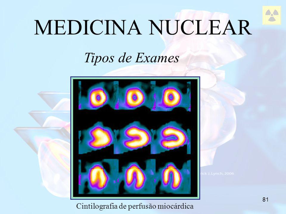 81 MEDICINA NUCLEAR Tipos de Exames Cintilografia de perfusão miocárdica