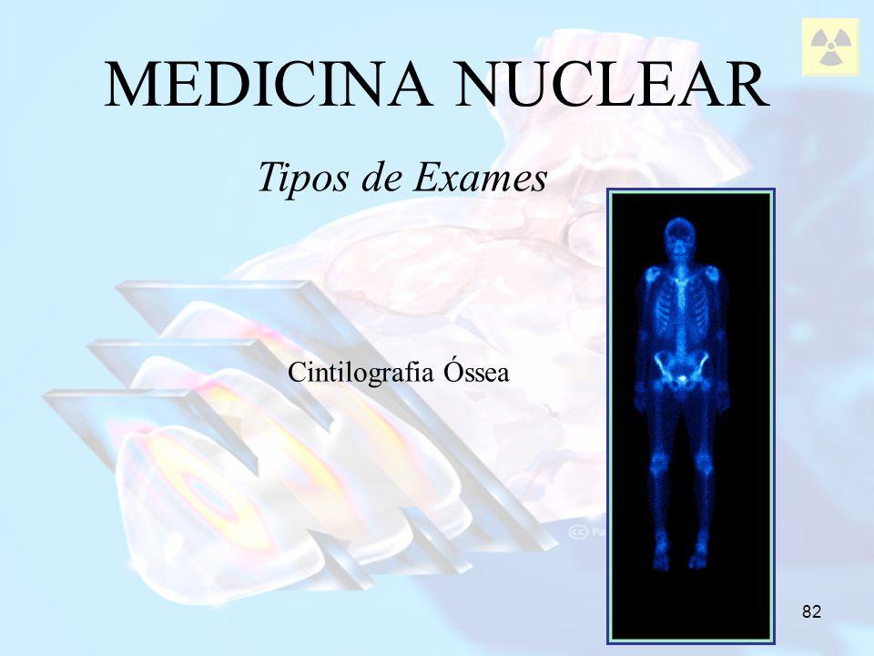 82 MEDICINA NUCLEAR Tipos de Exames Cintilografia Óssea