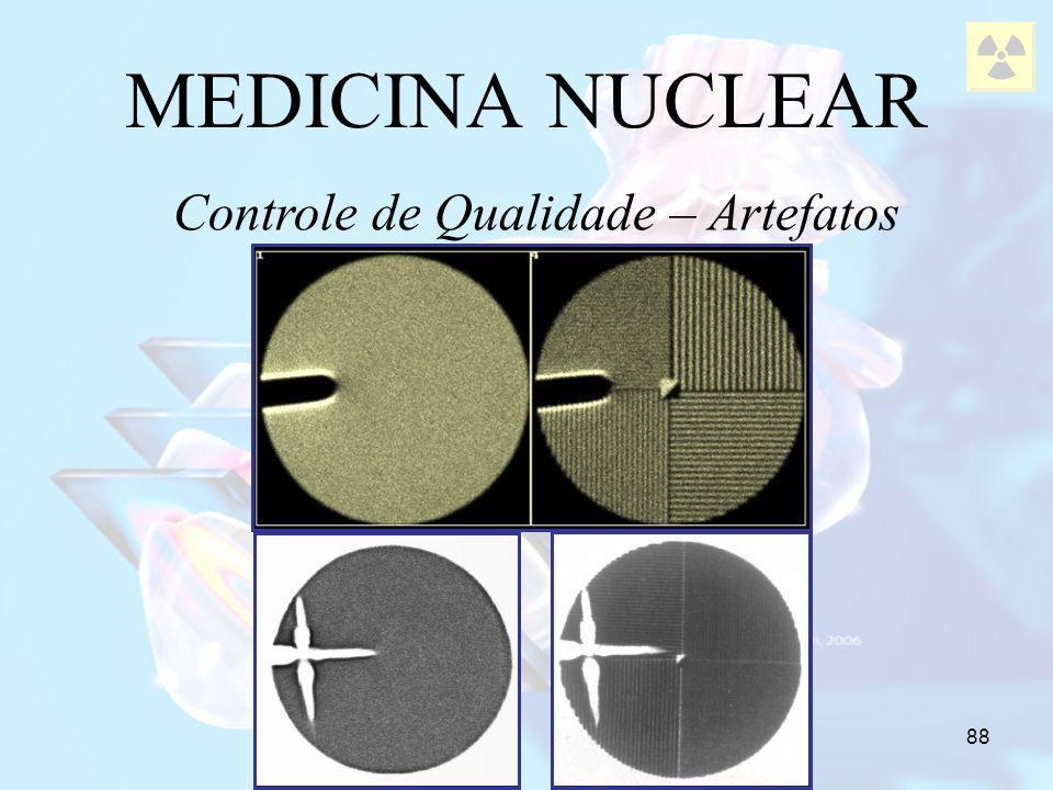 88 MEDICINA NUCLEAR Controle de Qualidade – Artefatos