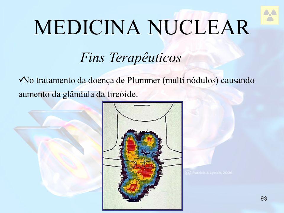 93 No tratamento da doença de Plummer (multi nódulos) causando aumento da glândula da tireóide. MEDICINA NUCLEAR Fins Terapêuticos