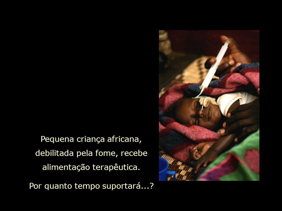 Pequena criança africana, debilitada pela fome, recebe alimentação terapêutica.