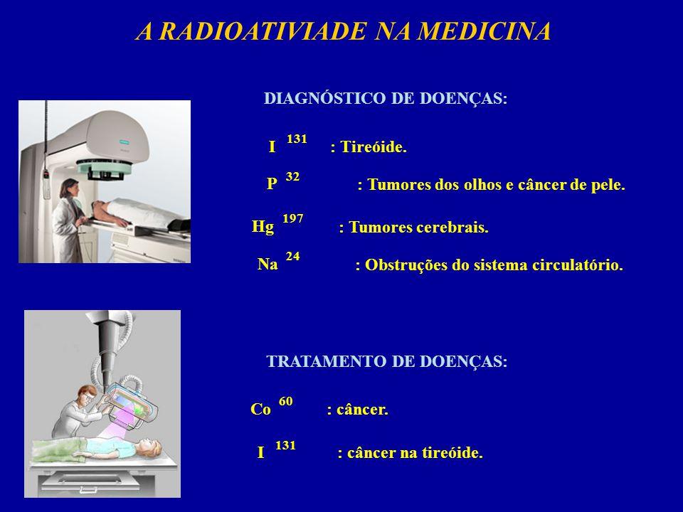 A RADIOATIVIADE NA MEDICINA DIAGNÓSTICO DE DOENÇAS: 131 I: Tireóide.