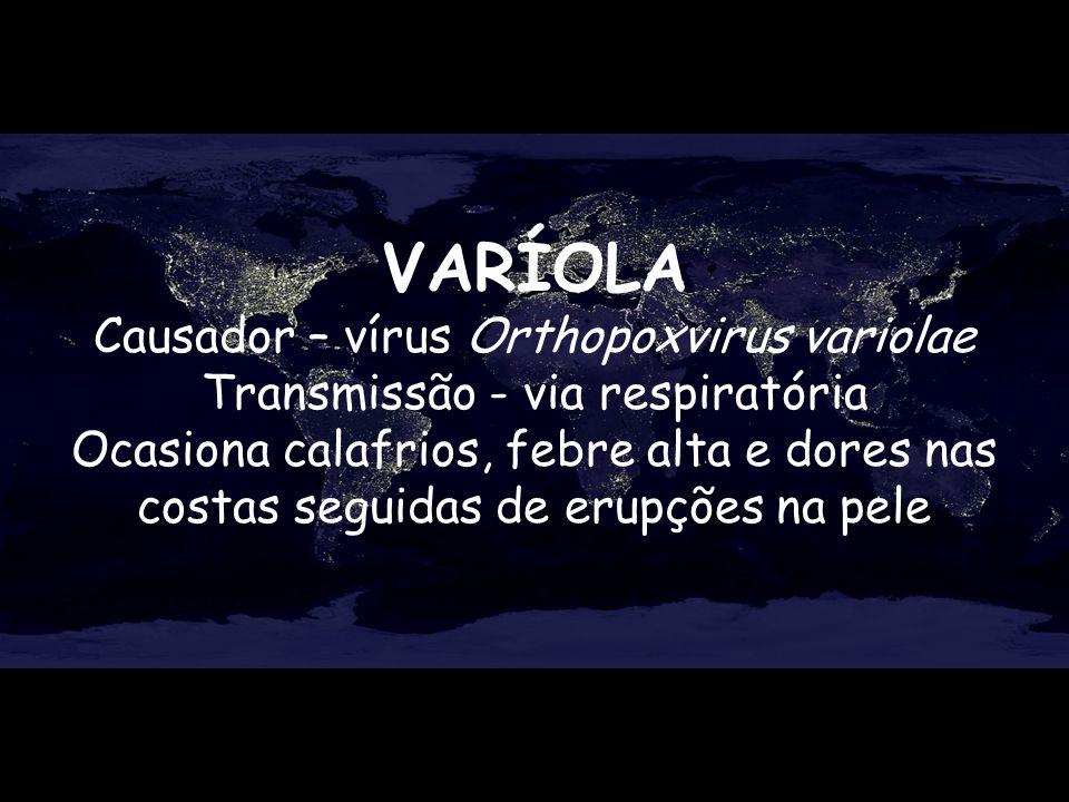 VARÍOLA Causador – vírus Orthopoxvirus variolae Transmissão - via respiratória Ocasiona calafrios, febre alta e dores nas costas seguidas de erupções