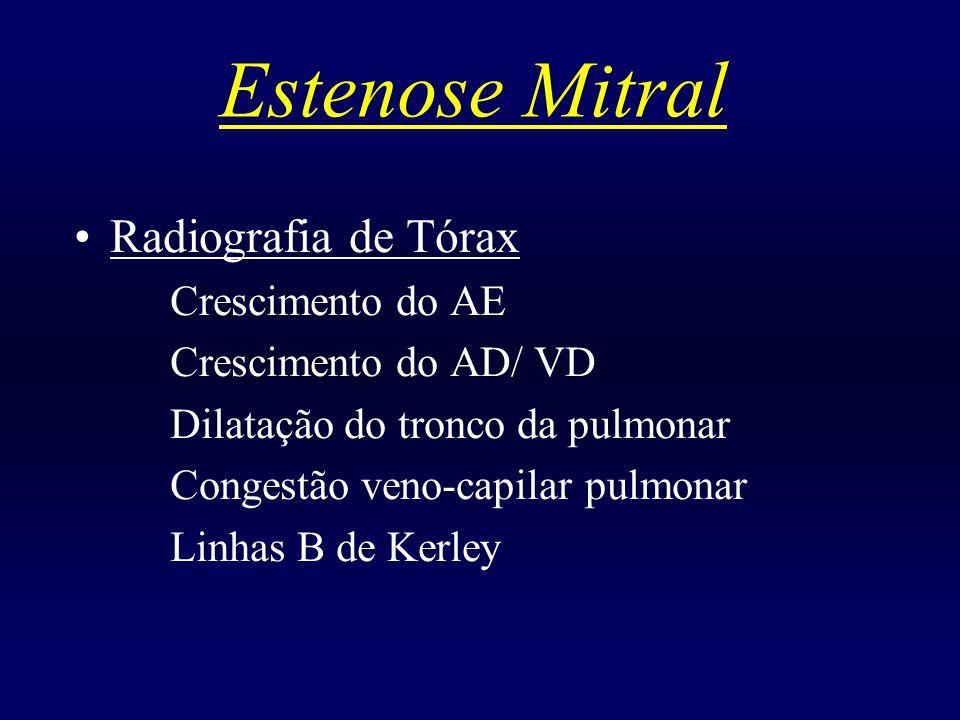 Estenose Mitral Radiografia de Tórax Crescimento do AE Crescimento do AD/ VD Dilatação do tronco da pulmonar Congestão veno-capilar pulmonar Linhas B