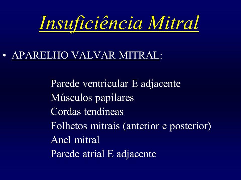Insuficiência Mitral APARELHO VALVAR MITRAL: Parede ventricular E adjacente Músculos papilares Cordas tendíneas Folhetos mitrais (anterior e posterior