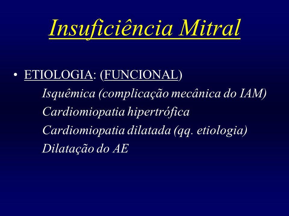 Insuficiência Mitral ETIOLOGIA: (FUNCIONAL) Isquêmica (complicação mecânica do IAM) Cardiomiopatia hipertrófica Cardiomiopatia dilatada (qq. etiologia