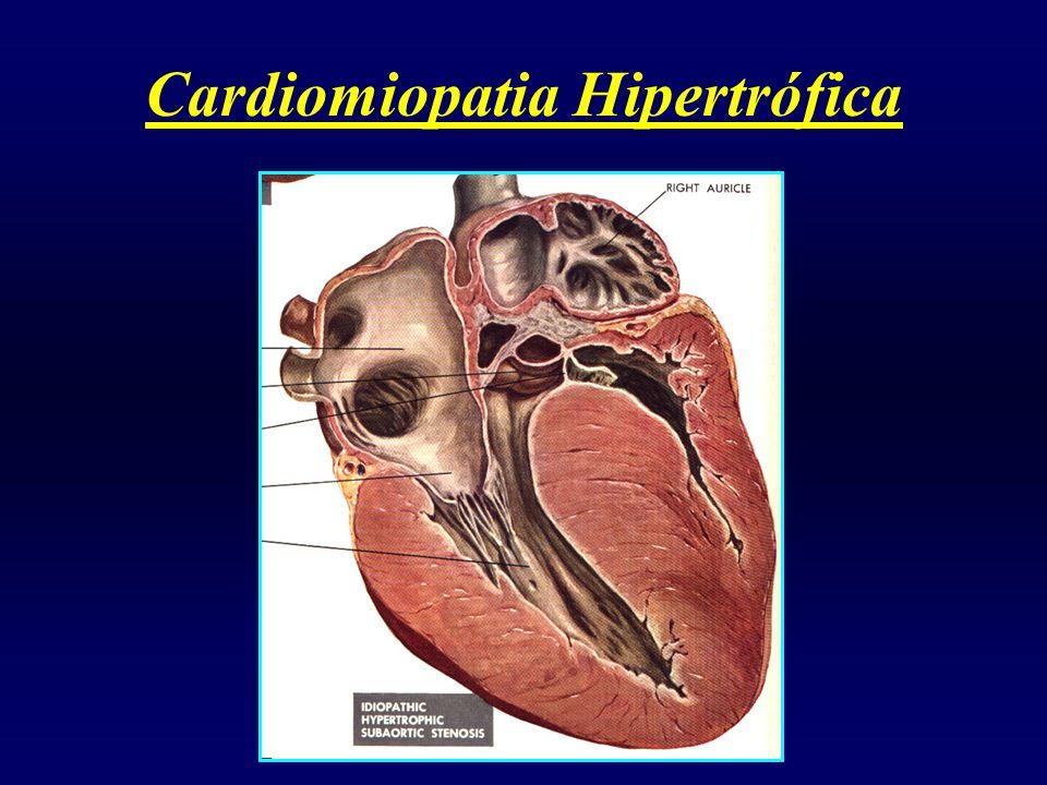 Cardiomiopatia Hipertrófica