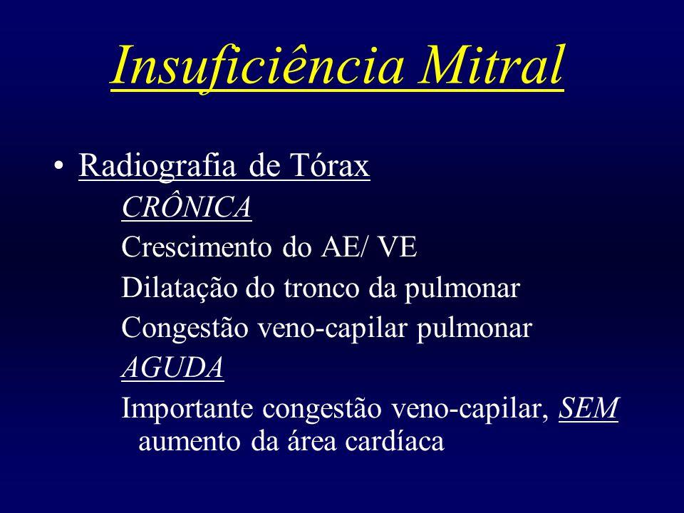 Insuficiência Mitral Radiografia de Tórax CRÔNICA Crescimento do AE/ VE Dilatação do tronco da pulmonar Congestão veno-capilar pulmonar AGUDA Importan