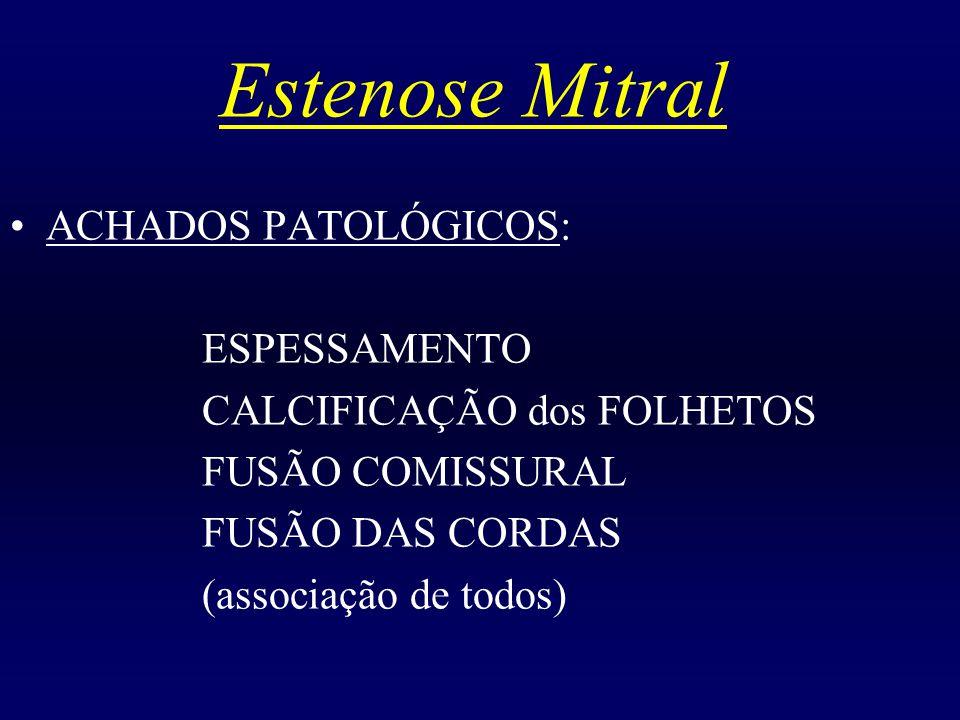 Estenose Mitral ACHADOS PATOLÓGICOS: ESPESSAMENTO CALCIFICAÇÃO dos FOLHETOS FUSÃO COMISSURAL FUSÃO DAS CORDAS (associação de todos)