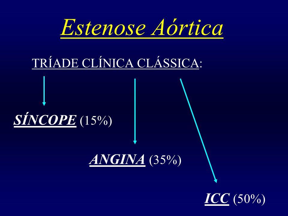 Estenose Aórtica TRÍADE CLÍNICA CLÁSSICA: SÍNCOPE (15%) ANGINA (35%) ICC (50%)