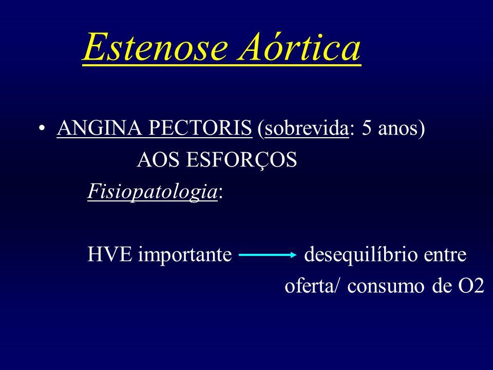 Estenose Aórtica ANGINA PECTORIS (sobrevida: 5 anos) AOS ESFORÇOS Fisiopatologia: HVE importante desequilíbrio entre oferta/ consumo de O2