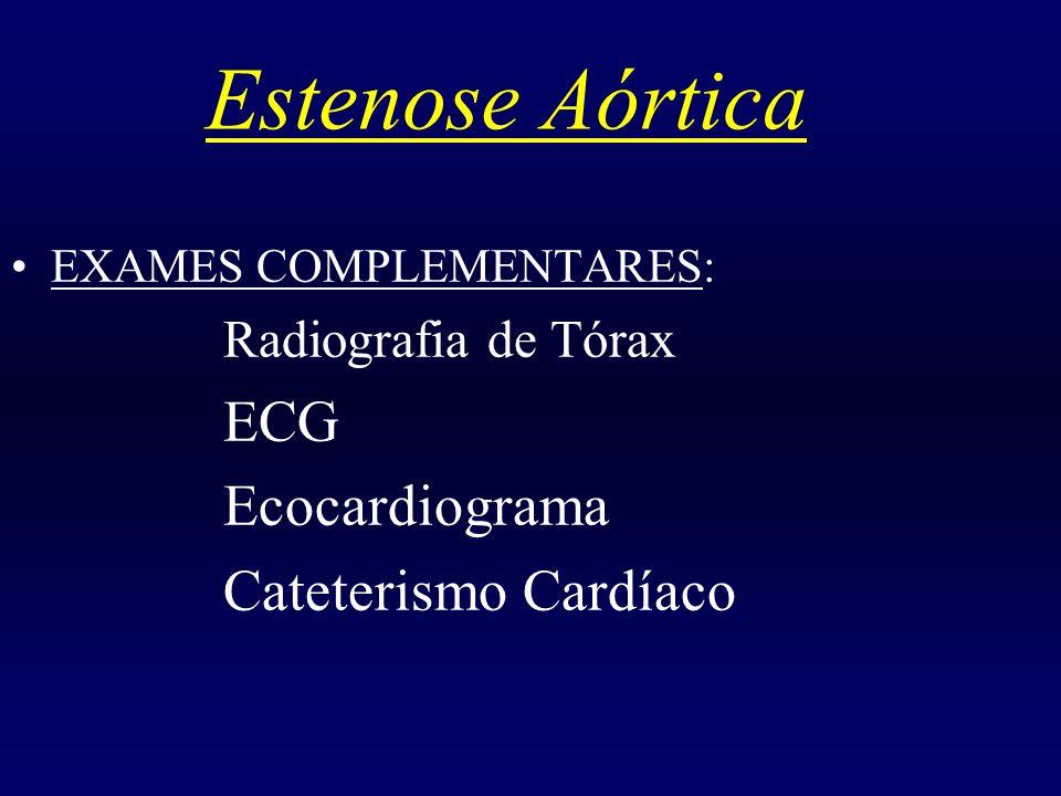 Estenose Aórtica EXAMES COMPLEMENTARES: Radiografia de Tórax ECG Ecocardiograma Cateterismo Cardíaco