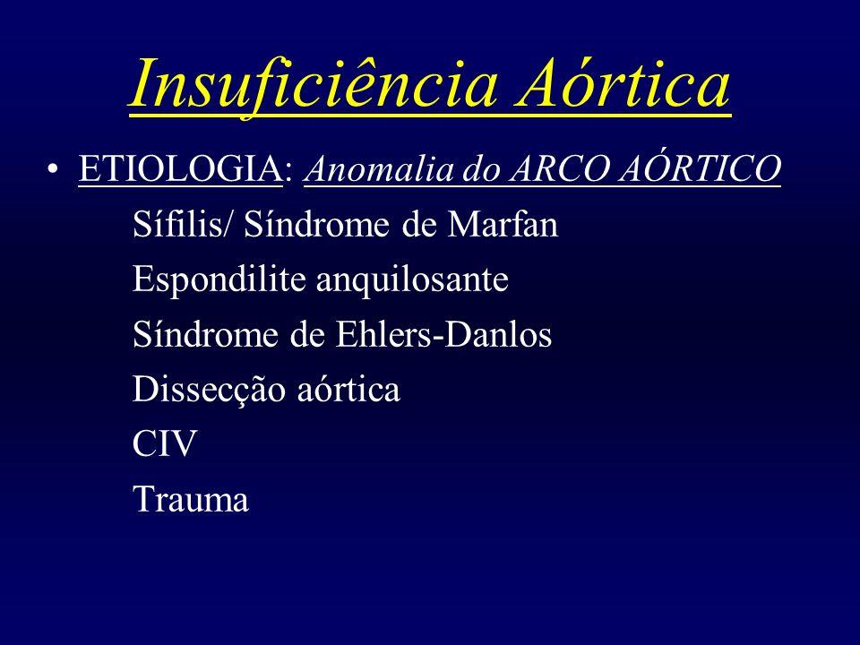 Insuficiência Aórtica ETIOLOGIA: Anomalia do ARCO AÓRTICO Sífilis/ Síndrome de Marfan Espondilite anquilosante Síndrome de Ehlers-Danlos Dissecção aór