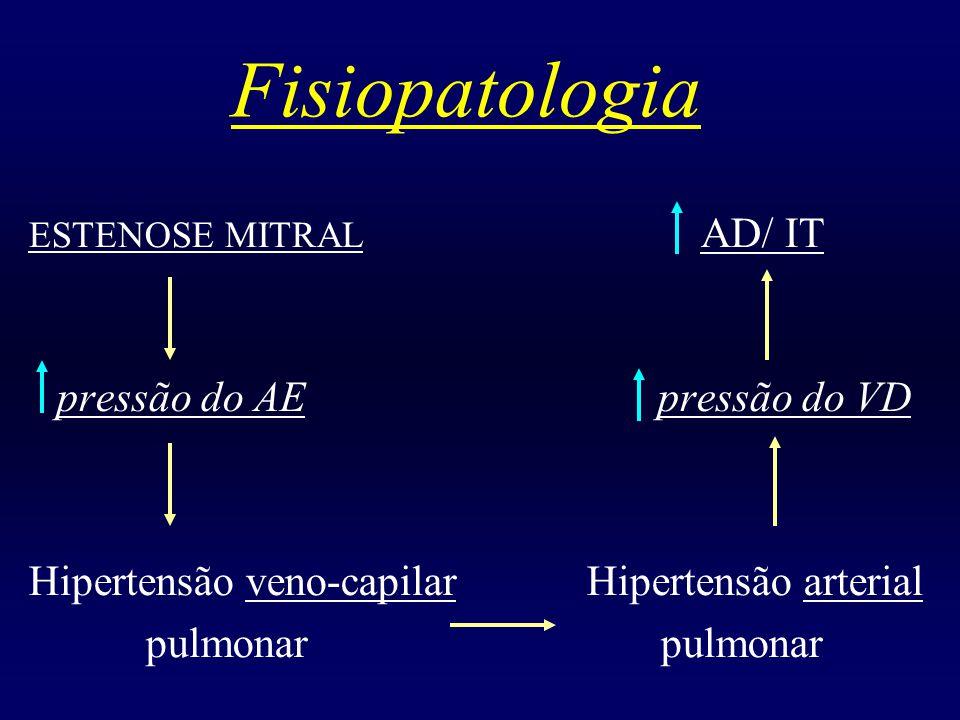 Fisiopatologia ESTENOSE MITRAL AD/ IT pressão do AE pressão do VD Hipertensão veno-capilar Hipertensão arterial pulmonar pulmonar