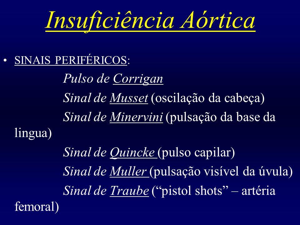 Insuficiência Aórtica SINAIS PERIFÉRICOS: Pulso de Corrigan Sinal de Musset (oscilação da cabeça) Sinal de Minervini (pulsação da base da lingua) Sina