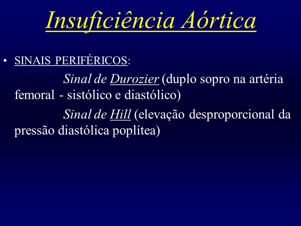 Insuficiência Aórtica SINAIS PERIFÉRICOS: Sinal de Durozier (duplo sopro na artéria femoral - sistólico e diastólico) Sinal de Hill (elevação despropo