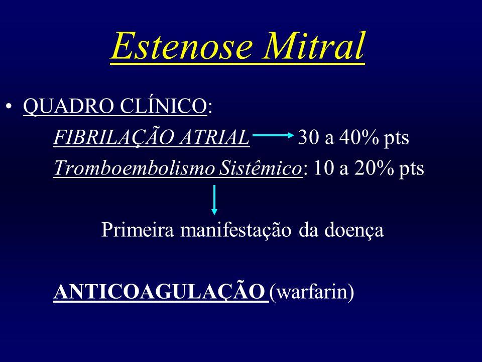 Estenose Mitral QUADRO CLÍNICO: FIBRILAÇÃO ATRIAL 30 a 40% pts Tromboembolismo Sistêmico: 10 a 20% pts Primeira manifestação da doença ANTICOAGULAÇÃO
