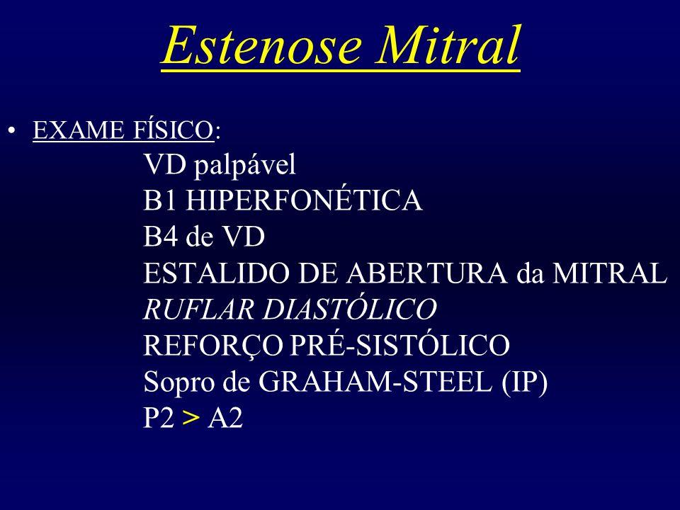 Estenose Mitral EXAME FÍSICO: VD palpável B1 HIPERFONÉTICA B4 de VD ESTALIDO DE ABERTURA da MITRAL RUFLAR DIASTÓLICO REFORÇO PRÉ-SISTÓLICO Sopro de GR