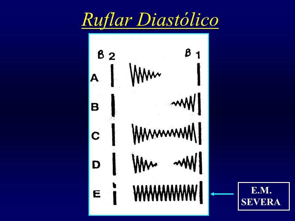 Ruflar Diastólico E.M. SEVERA
