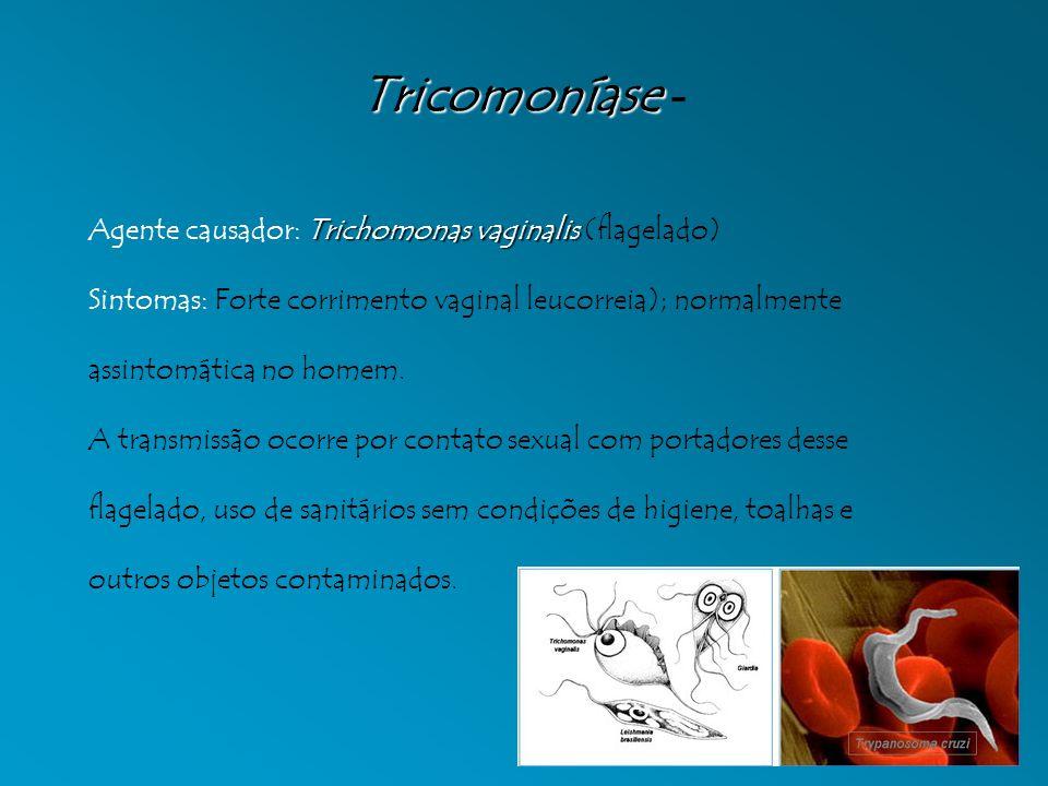 Tricomoníase Tricomoníase - Trichomonas vaginalis Agente causador: Trichomonas vaginalis (flagelado) Sintomas: Forte corrimento vaginal leucorreia); normalmente assintomática no homem.