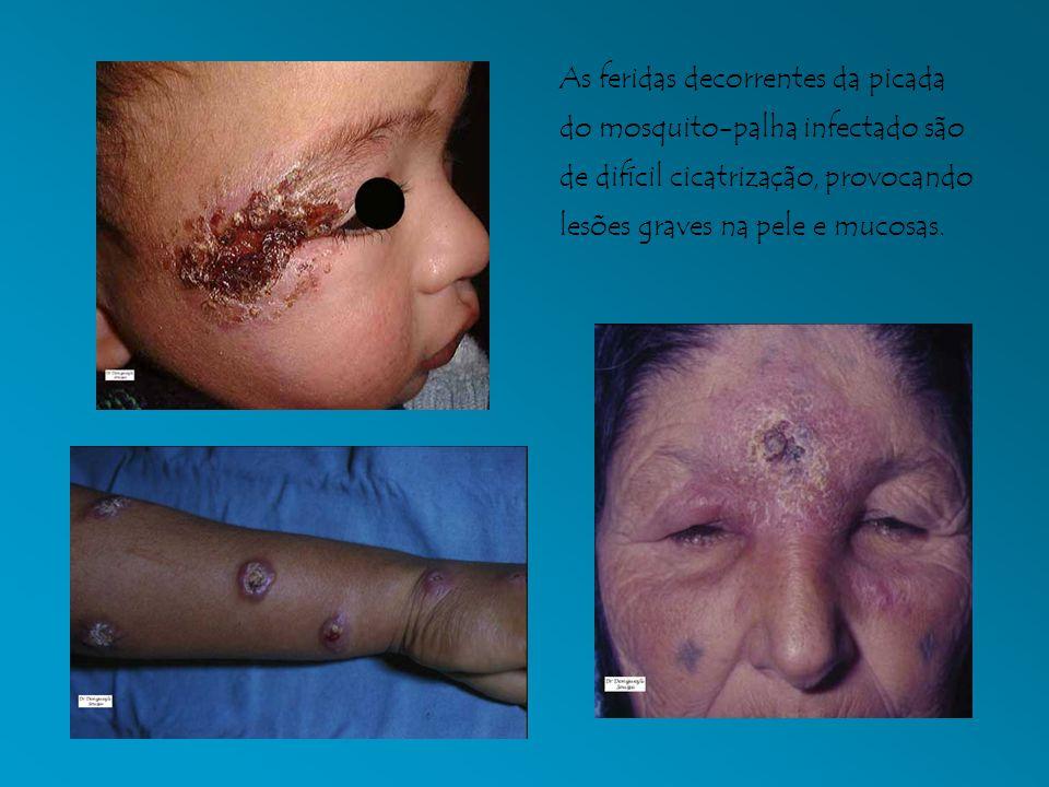 As feridas decorrentes da picada do mosquito-palha infectado são de difícil cicatrização, provocando lesões graves na pele e mucosas.