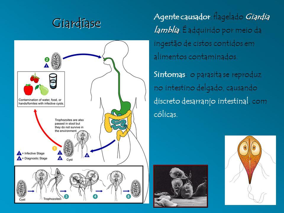 Giardíase Giardia lamblia Agente causador: flagelado Giardia lamblia. É adquirido por meio da ingestão de cistos contidos em alimentos contaminados. S