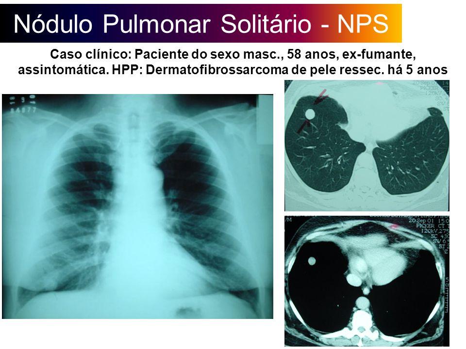 Nódulo Pulmonar Solitário - NPS Caso clínico: Paciente do sexo masc., 58 anos, ex-fumante, assintomática. HPP: Dermatofibrossarcoma de pele ressec. há