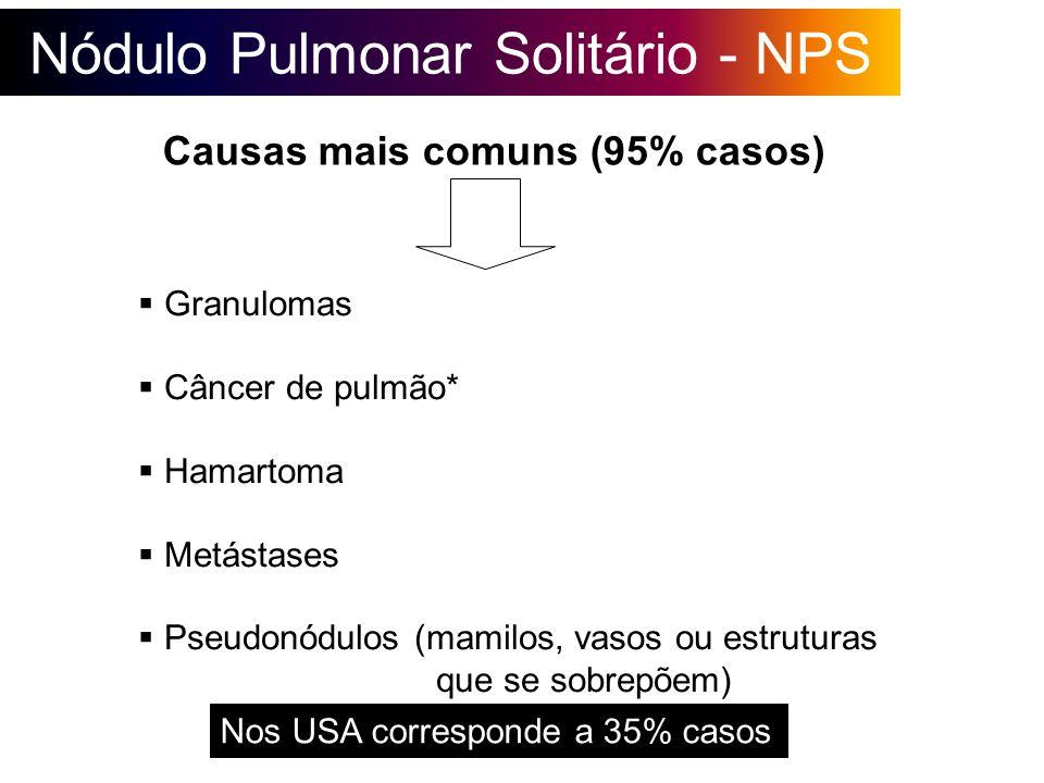Nódulo Pulmonar Solitário - NPS Causas mais comuns (95% casos) Granulomas Câncer de pulmão* Hamartoma Metástases Pseudonódulos (mamilos, vasos ou estr