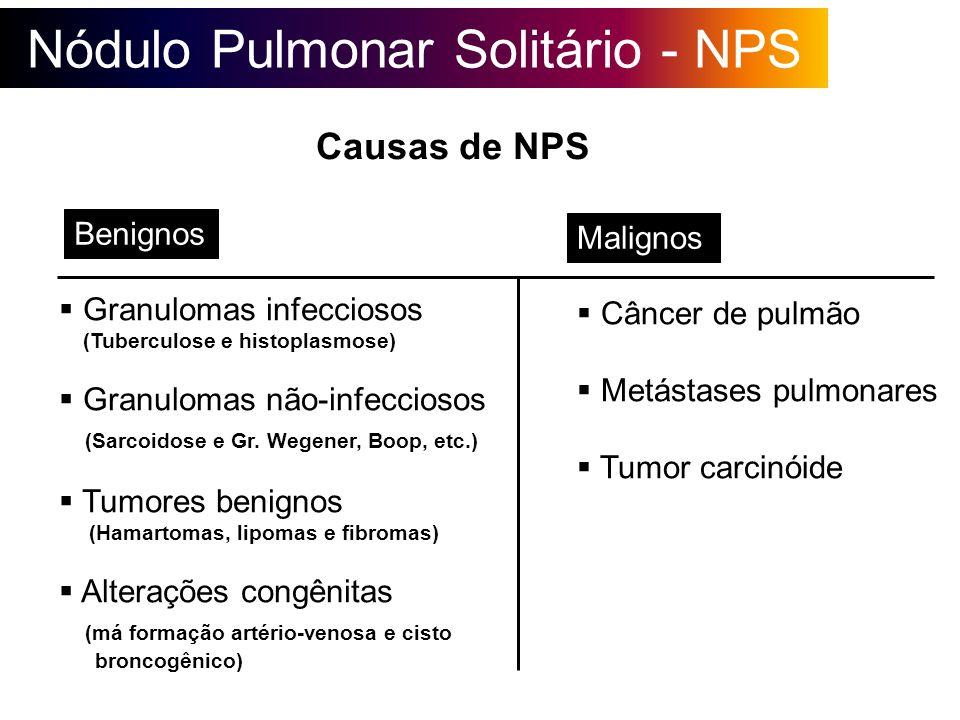 Nódulo Pulmonar Solitário - NPS Causas de NPS Granulomas infecciosos (Tuberculose e histoplasmose) Granulomas não-infecciosos (Sarcoidose e Gr. Wegene