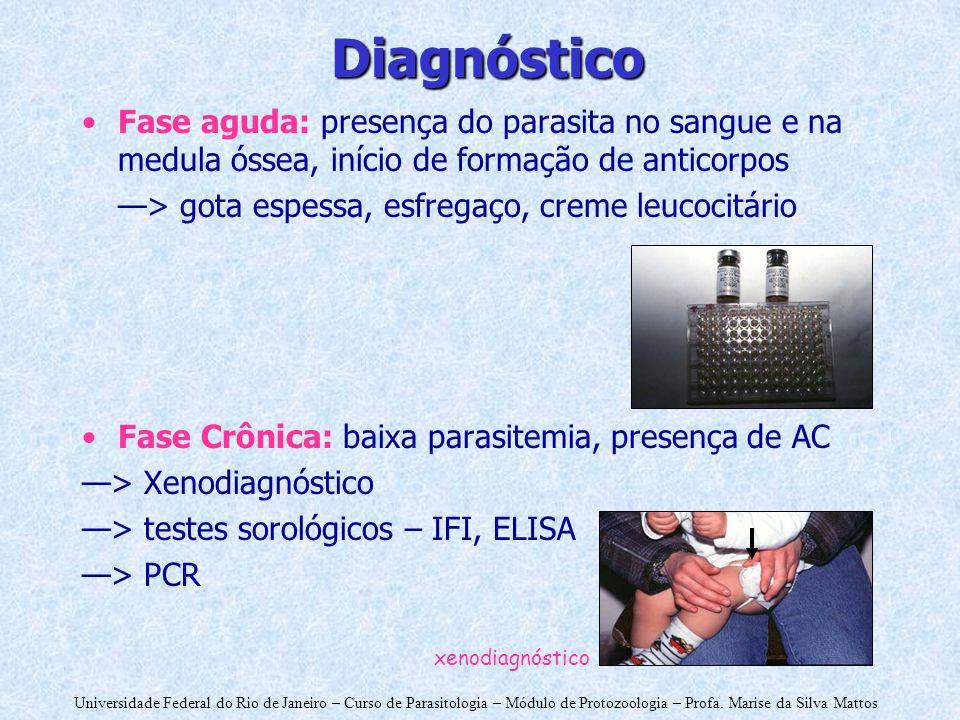 Universidade Federal do Rio de Janeiro – Curso de Parasitologia – Módulo de Protozoologia – Profa. Marise da Silva Mattos Diagnóstico Fase aguda: pres